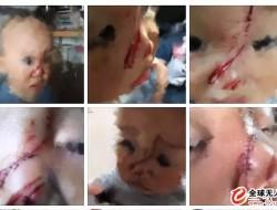 无人机砸伤幼童最新进展:肇事者被起诉